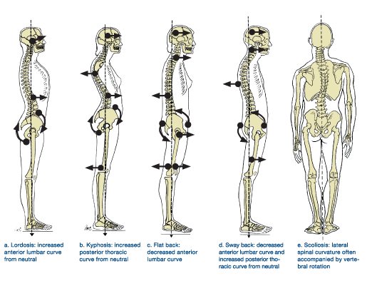 Do you lock your knees? You may have a 'sway back' posture ...